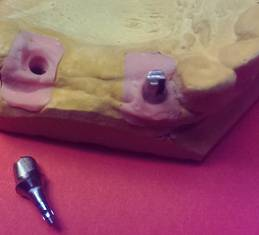 implantat3